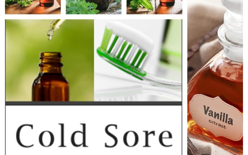 What Is the Best Treatment for Cold Sores? Holistic Ways of Treating Cold Sores